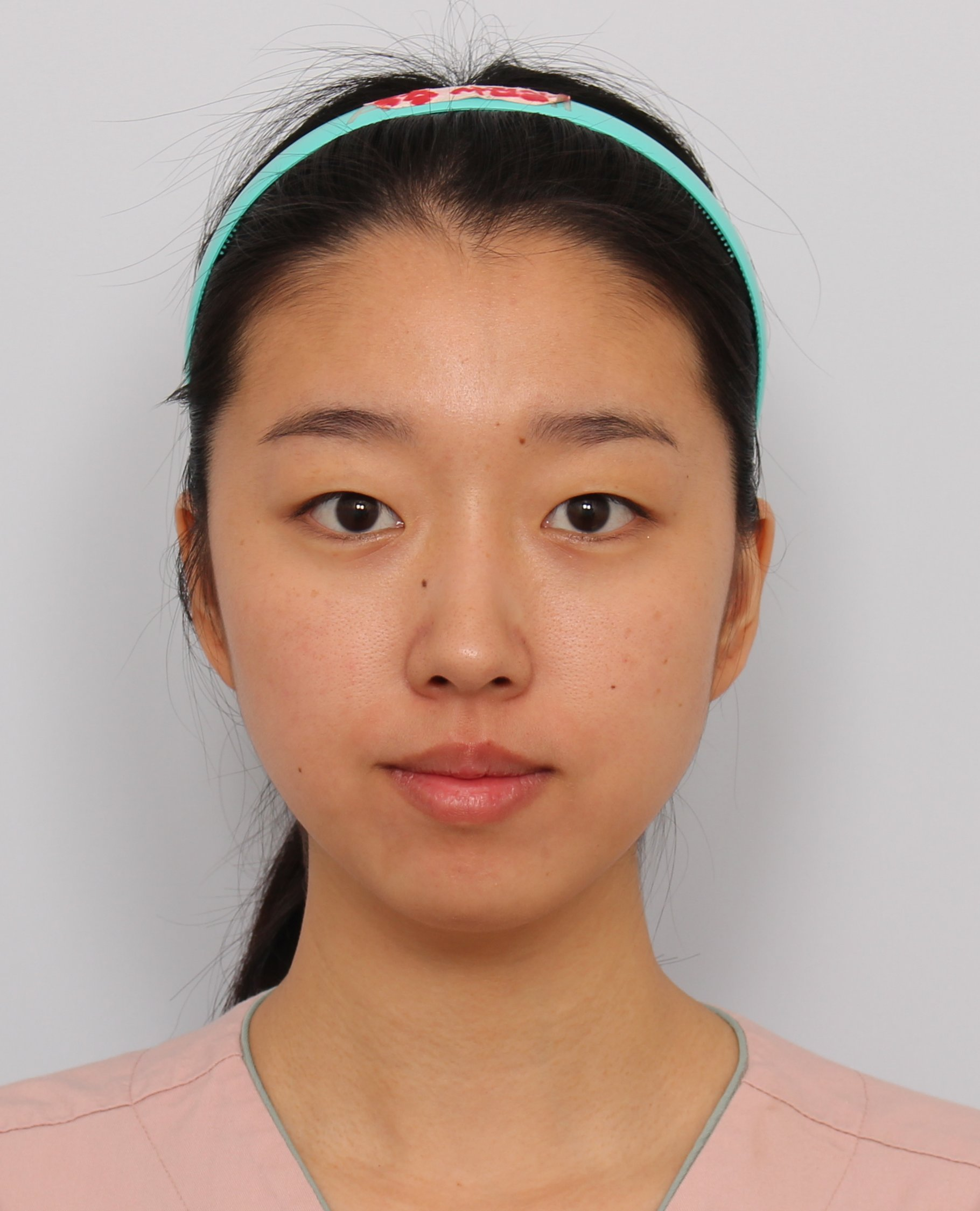 effects on plastic surgery Like any other medical treatment or operation, plastic surgery is accompanied by a number of potential side effects these side effects are worth considering before undergoing a procedure.