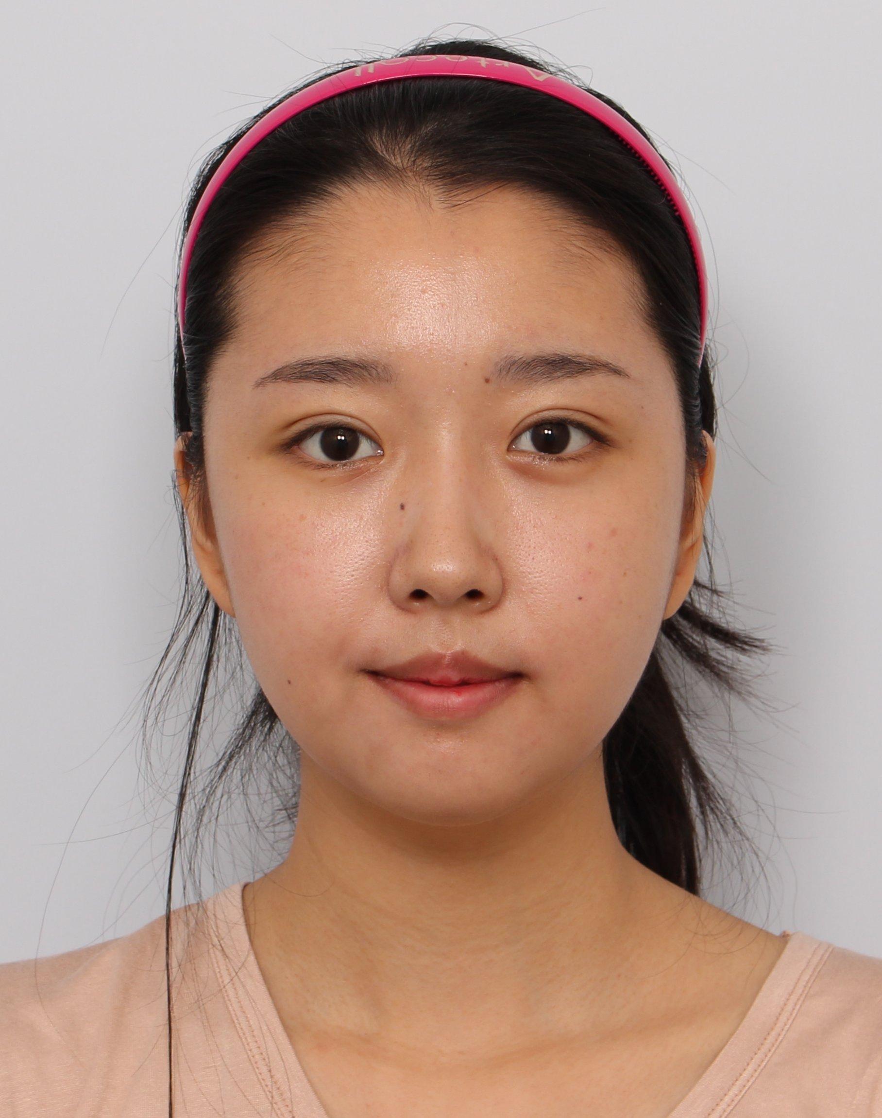 Plastic Surgery – Sunnydahye